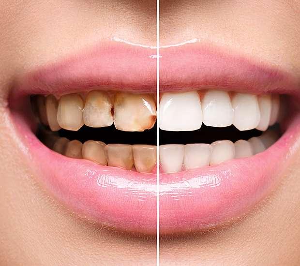 New York Dental Implant Restoration