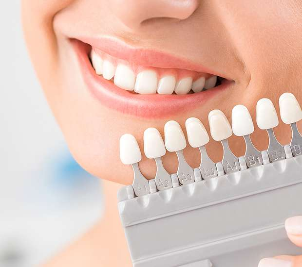 New York Dental Veneers and Dental Laminates